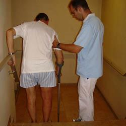 Stairs after knee replacement